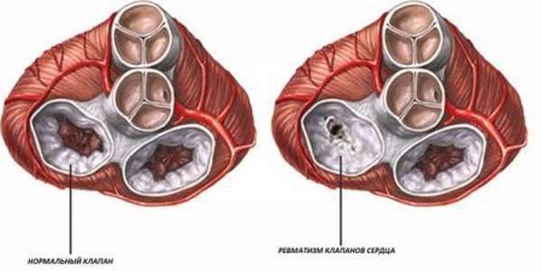 Особенности развития ревмокардита у детей и взрослых. Оценка степени опасности болезни