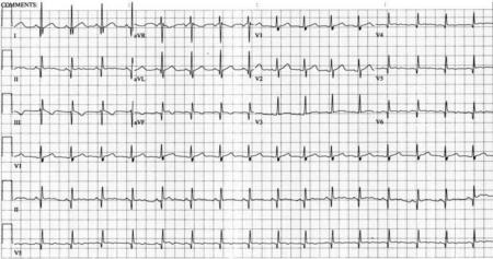 Каковы причины укорочения интервала pq на картине ЭКГ, диагностика и постановка диагноза
