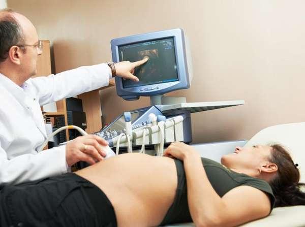 УЗИ беременной