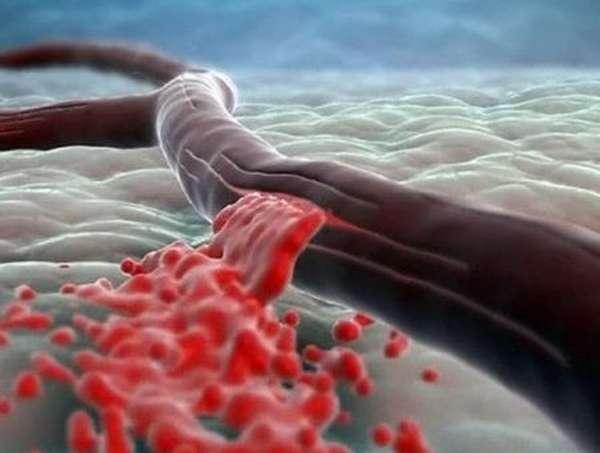 Причины повышенного гемоглобина в крови и способы понижения его уровня