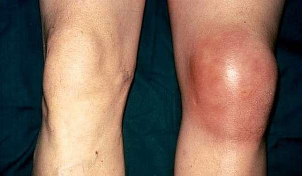 Формы артрита суставов