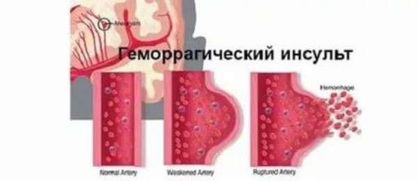 Причины низкого давления после инсульта. Основные типы заболевания и факторы риска сосудистых катастроф