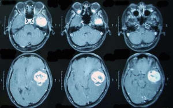 Снимок мозга МРТ
