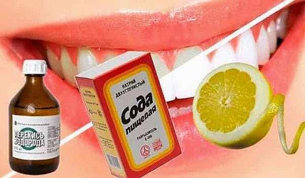 Домашние средства для удаления зубного камня