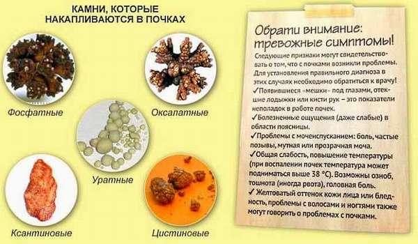 Камни в почках лечение в домашних условиях