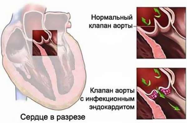 Патогенез инфекционного эндокардита у подростков и детей, механизм развития, симптоматика и лечение, профилактика и прогноз