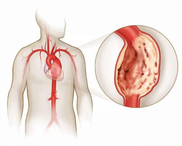 Формы, скорость и симптомы развития кальциноза аортального и митрального клапана сердца