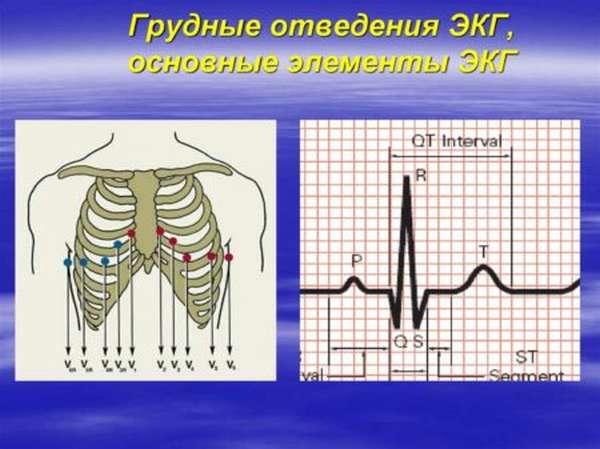 Разновидности отведений ЭКГ: стандартные и дополнительные методы диагностики