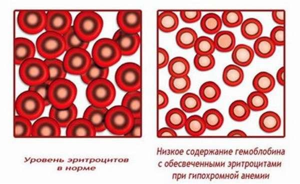 Цветовой показатель или когда говорят о гипохромии в общем анализе крови?