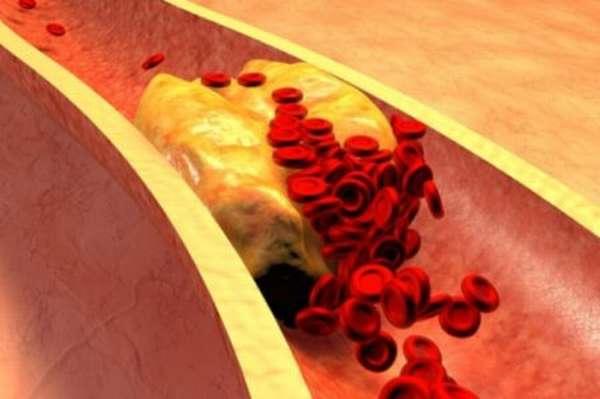 Что собой представляет процесс агрегации тромбоцитов и как он проходит?