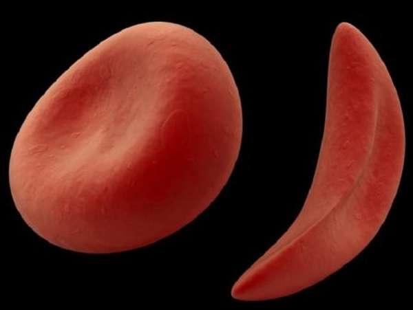 В каких случаях анализ может показать низкие показатели СОЭ в крови?