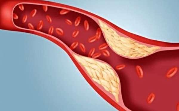 Помогает ли применение препарата «Атероклефит» от компании Эвалар в борьбе с повышенным уровнем холестерина?