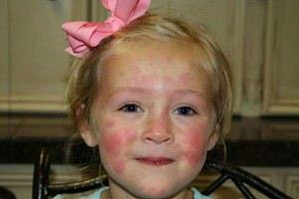 Как узнать аллергию