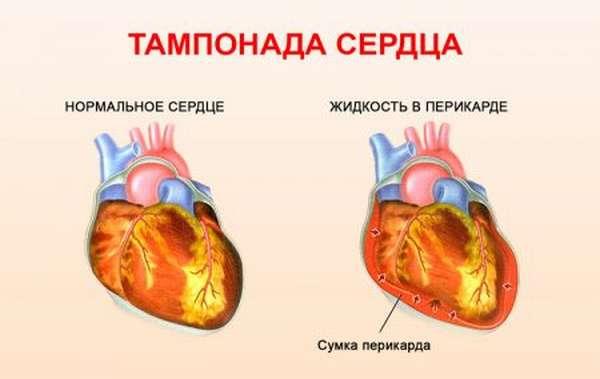Тампонада сердца и гемотампонада: причины, симптомы и лечение