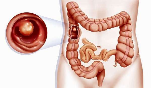 Полипы кишечника у взрослых. Симптомы и лечение