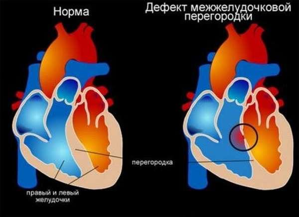 Есть ли разница между симптомами септального инфаркта, и другими формами инфарктов