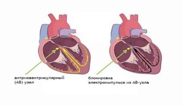 Чем могут быть опасны блокады сердца, этиология заболевания, методы лечения