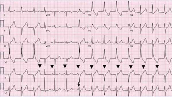 Причины возникновения идиовентрикулярного ритма сердца, диагностика, лечение