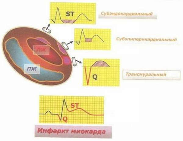 Отличие крупноочагового трансмурального инфаркта миокарда от субэндокардиального, терапия, реабилитация, прогноз
