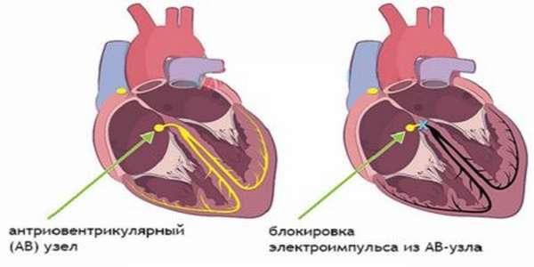 Причины болей в сердечной мышце, симптомы и методы лечения