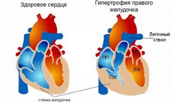Симптомы гипертрофии правого желудочка, методы выявления и лечения патологии