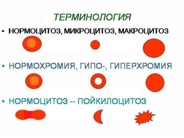 Понятие микроцитоза, и как он отображается в общем анализе крови больного?