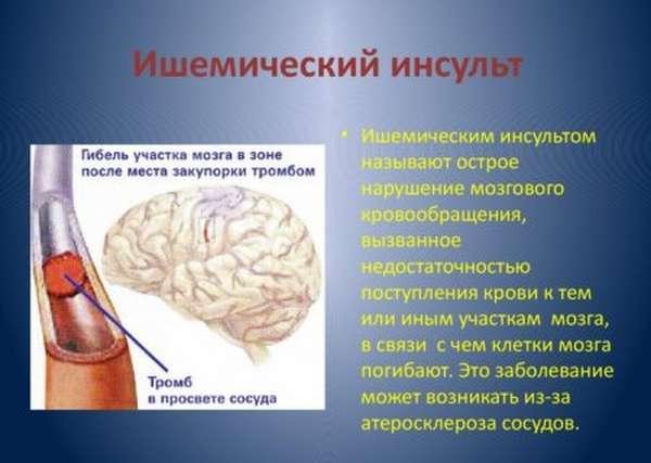 Прогноз при ишемическом инсульте правого полушария головного мозга, рекомендации