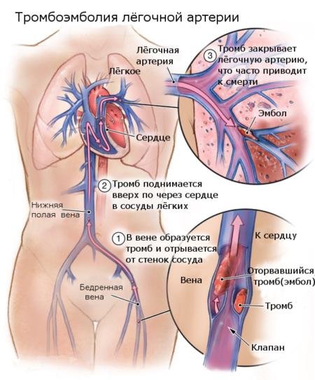 О чем говорит показатель гемоглобина 160 г/л, как понизить уровень до нормы?