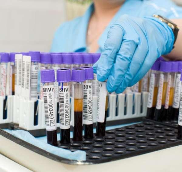 Что нельзя есть перед тем как сдавать анализ крови на биохимию, правила забора, и чем грозит их несоблюдение?