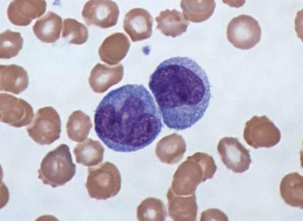 Причины повышения моноцитов при беременности, за что отвечают эти лейкоциты, что такое моноцитоз