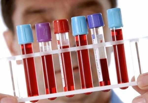 Сколько действителен ответ общего анализа крови и биохимического исследования?