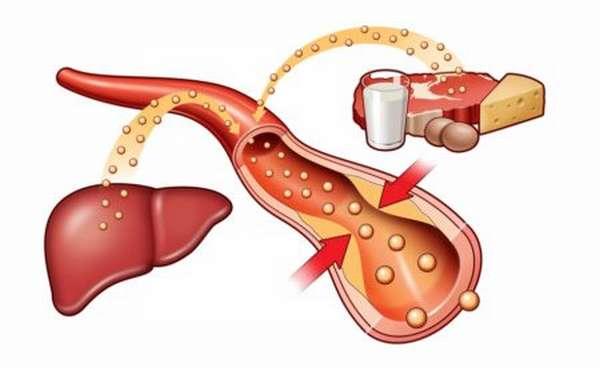 Какие методы лечения применяются при показаниях холестерина 8.8?
