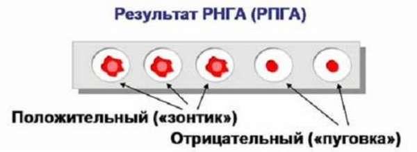 Как расшифровывается РПГА анализ крови и каким образом к нему подготовиться?