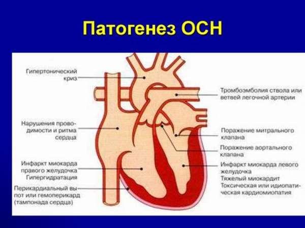 Симптомы сердечной недостаточности острого и хронического типа
