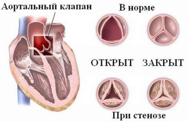 Причины развития аортального стеноза и степень тяжести патологического процесса
