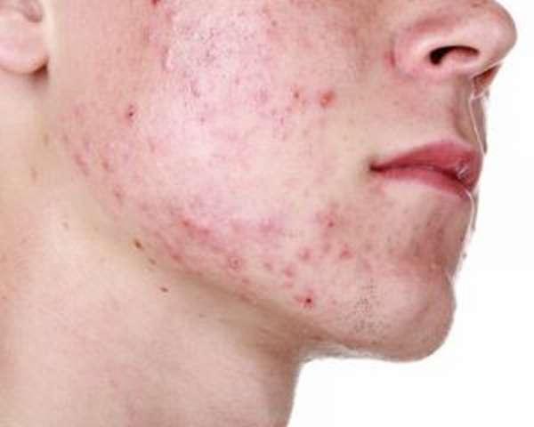 Сыпь - побочный эффект