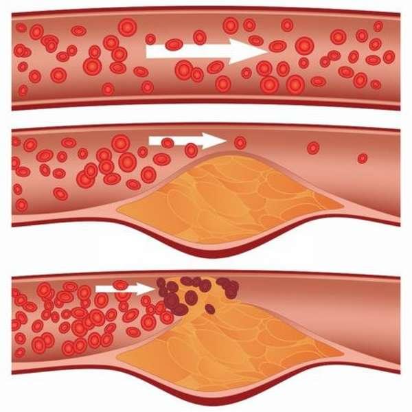 Особенности повышенного гемоглобина у ребенка, причины, методы диагностики и лечения
