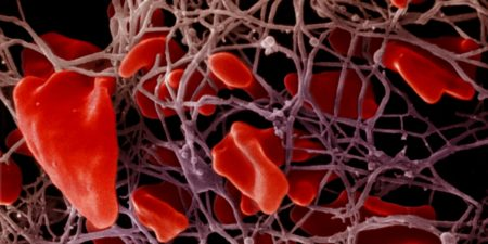 Расшифровка показателей биохимического анализа крови у беременных