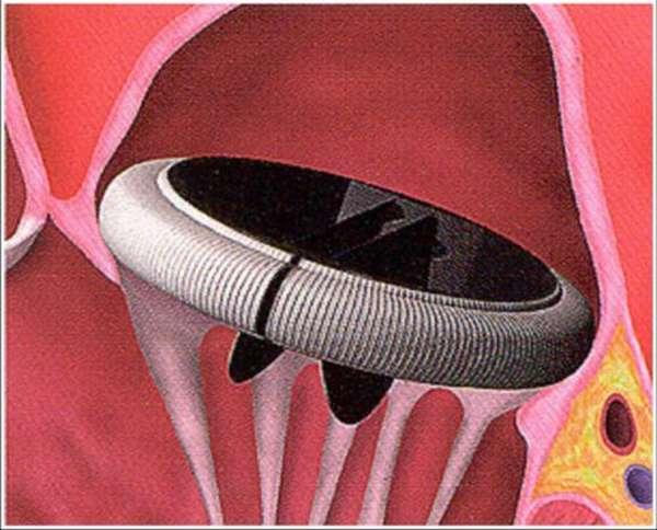 Характеристика порока митрального клапана и чем он так опасен для здоровья и жизни?