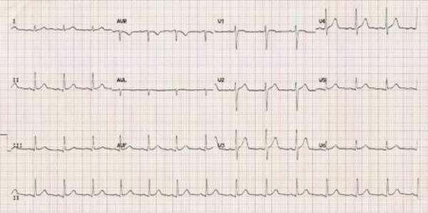 В чем заключаются принципы диагностики и правила подготовки к ЭКГ?