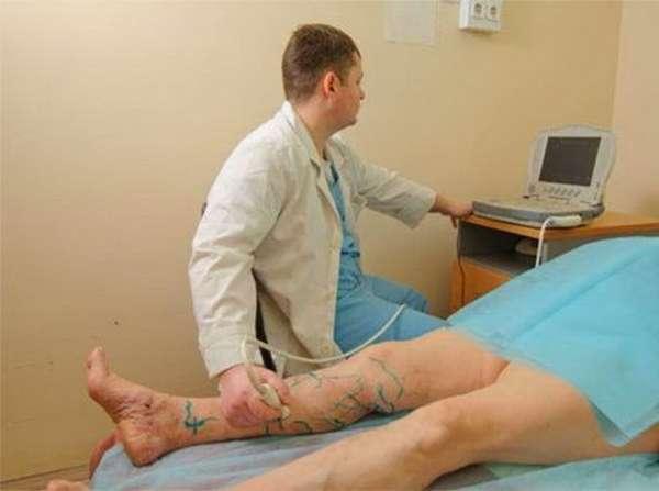 Диагностика тромбоза подколенной вены: симптомы, патологическое прогрессирование, лечение