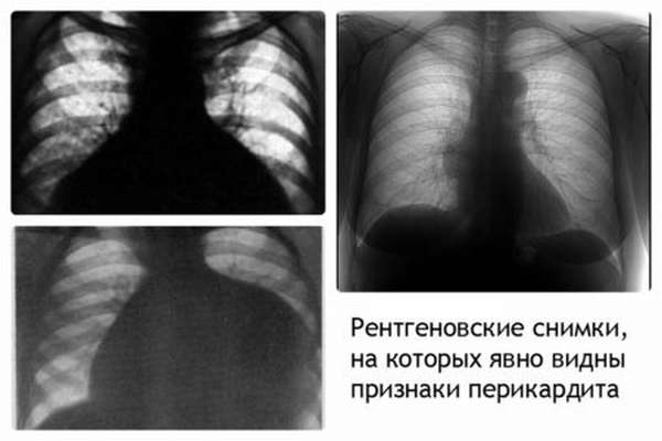 Особенности эхокардиографии как метода диагностики, применение, показания и виды процедуры