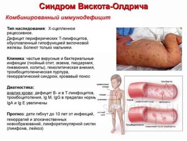 Почему возникают симптомы лимфоцитопении, методы диагностики и лечения болезни