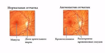 Диагностирование ангиопатии сетчатки у ребенка. Причины, симптоматика, лечение, осложняющие факторы