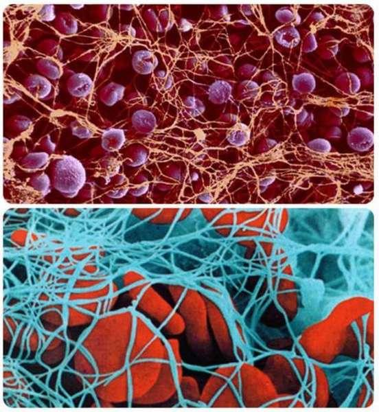 Как повышают показатели тромбоцитов в крови: эффективные методы коррекции