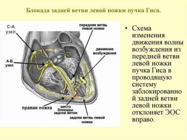 ЭКГ при блокаде левой ножки пучка Гиса, причины развития патологии, методы лечения