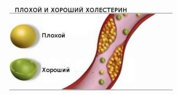 Нормы холестерина в крови у женщин после 40 лет, причины изменения показателей и способы нормализации состояния