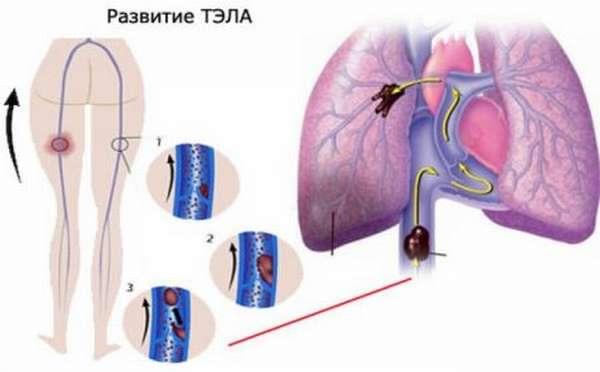 Что является причиной сердечно-легочной недостаточности сердце или легкие?