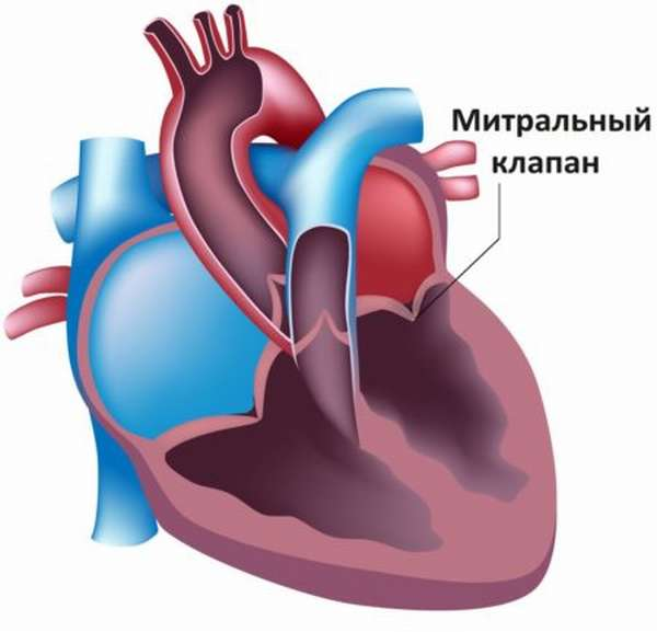 Острая и хроническая форма аортальной регургитации, степени развития патологии