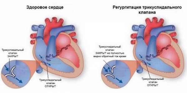Особенности развития трикуспидальной недостаточности сердца и тактика лечения